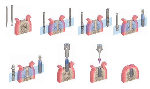 Vstavljanje implantatov - faza 1
