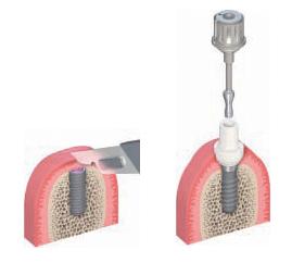 Vstavljanje implantatov - faza 2
