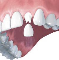 Vstavljanje implantatov - faza 3